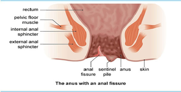 best homeopathy treatment for anal fissure | homeosure, Skeleton