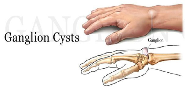 best homeopathy treatment for ganglion cyst | homeosure, Skeleton